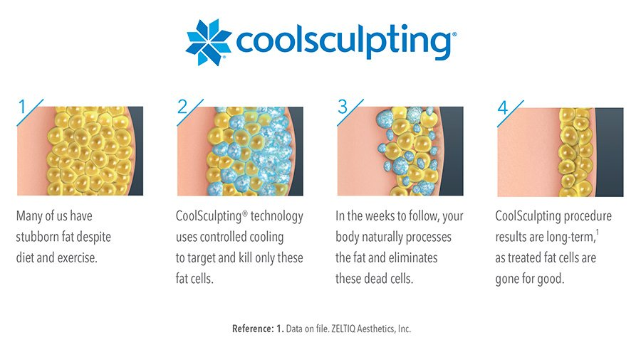 Procedure of Coolsculpting body sculpting